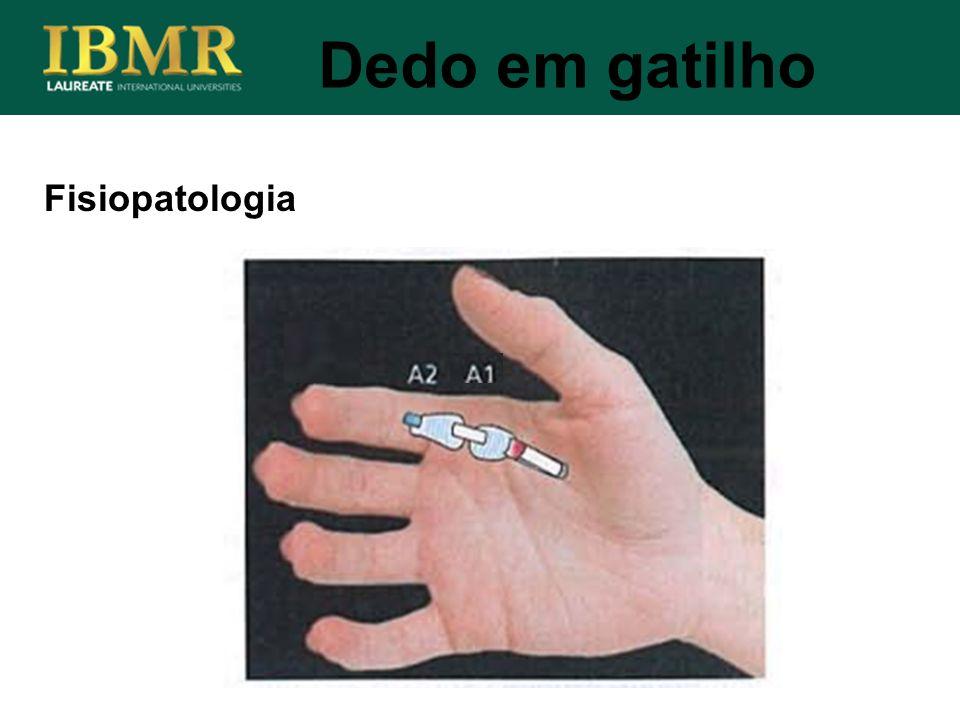 Fisiopatologia Dedo em gatilho