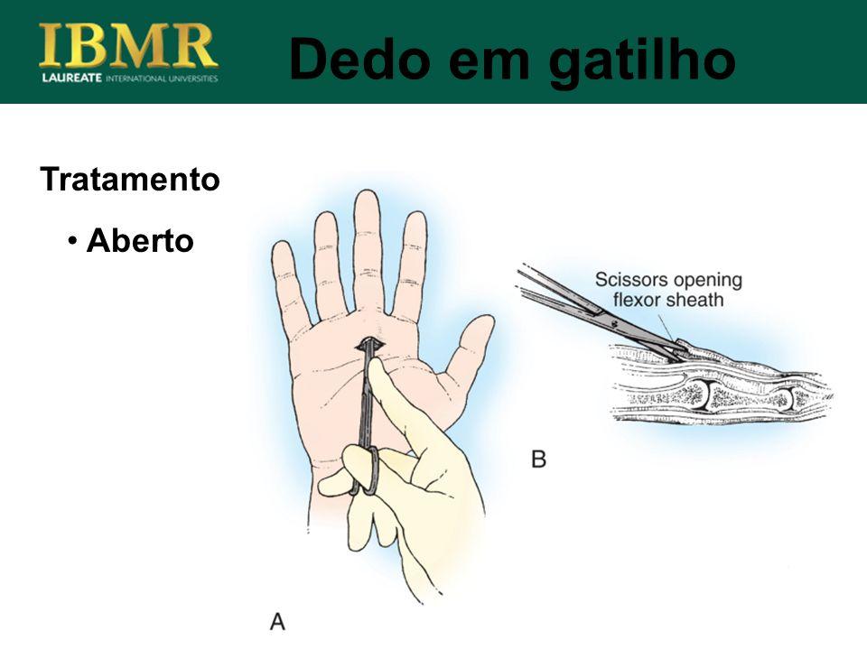 Tratamento Dedo em gatilho Aberto