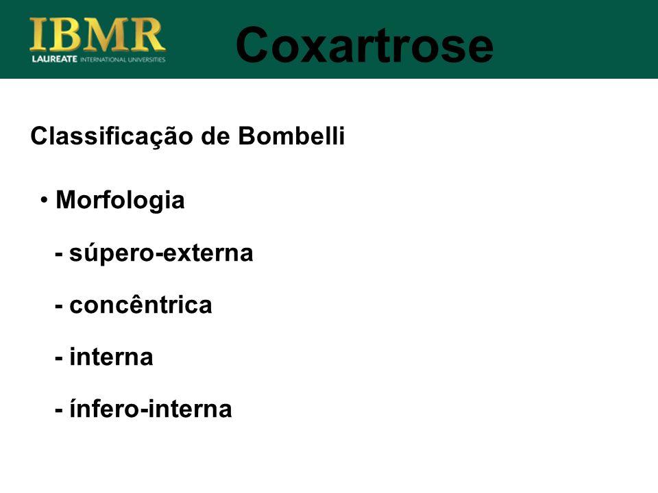 Classificação de Bombelli Coxartrose Morfologia - súpero-externa - concêntrica - interna - ínfero-interna