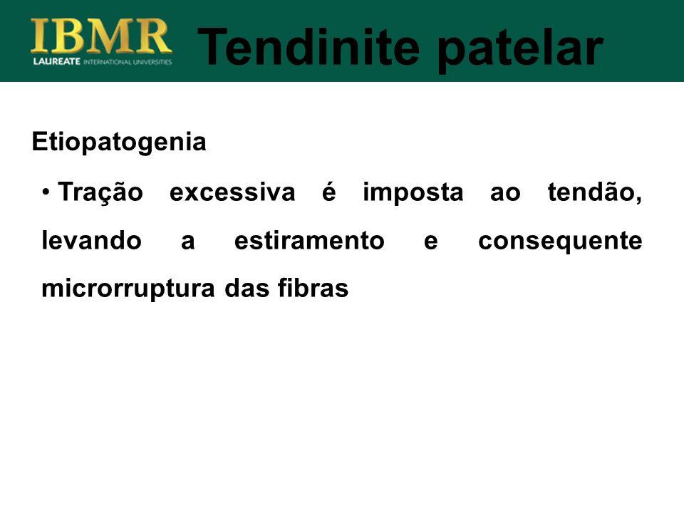 Etiopatogenia Tendinite patelar Tração excessiva é imposta ao tendão, levando a estiramento e consequente microrruptura das fibras
