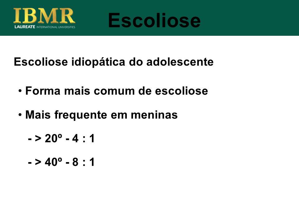 Escoliose idiopática do adolescente Escoliose Forma mais comum de escoliose Mais frequente em meninas - > 20º - 4 : 1 - > 40º - 8 : 1