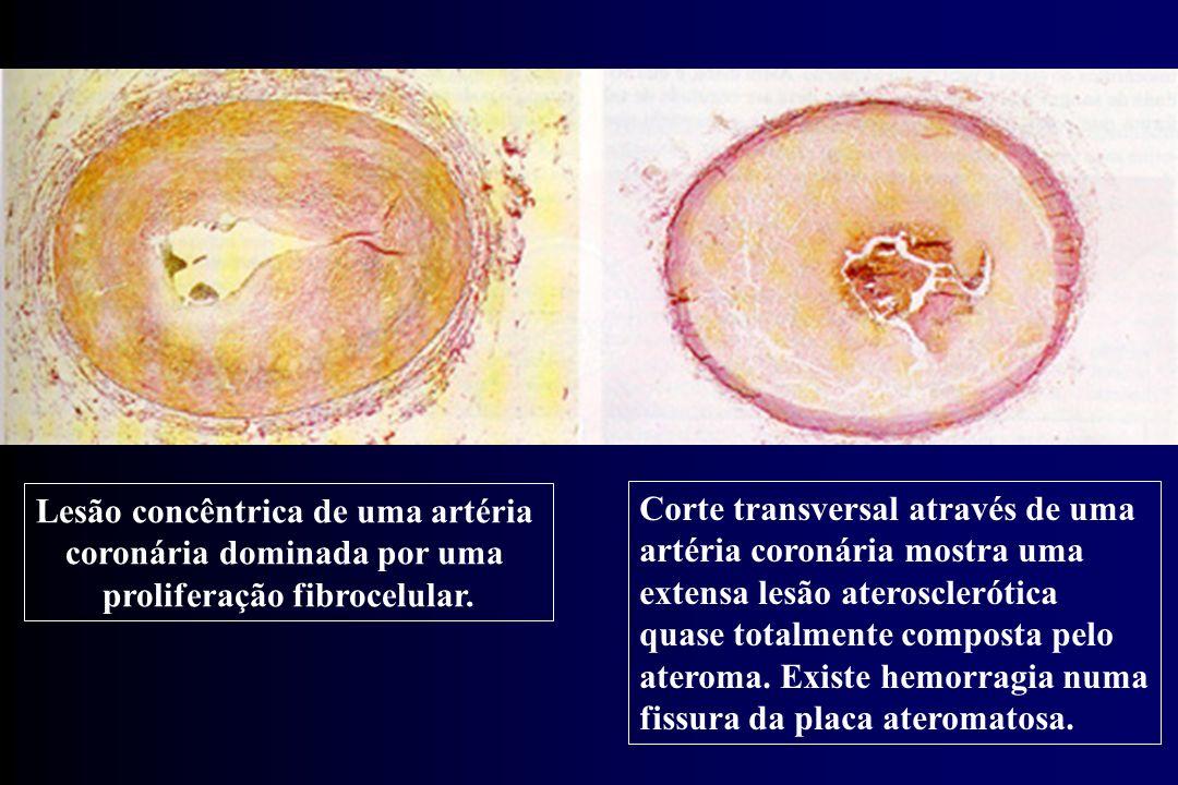 Lesão concêntrica de uma artéria coronária dominada por uma proliferação fibrocelular. Corte transversal através de uma artéria coronária mostra uma e
