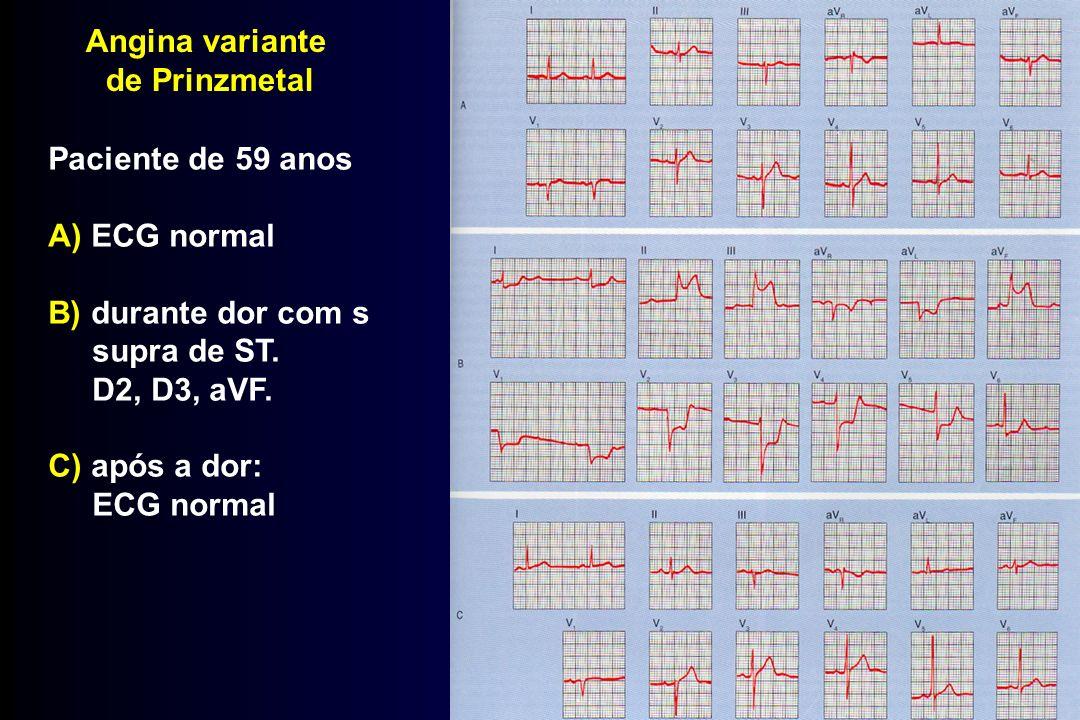 Angina variante de Prinzmetal Paciente de 59 anos A) ECG normal B) durante dor com s supra de ST. D2, D3, aVF. C) após a dor: ECG normal