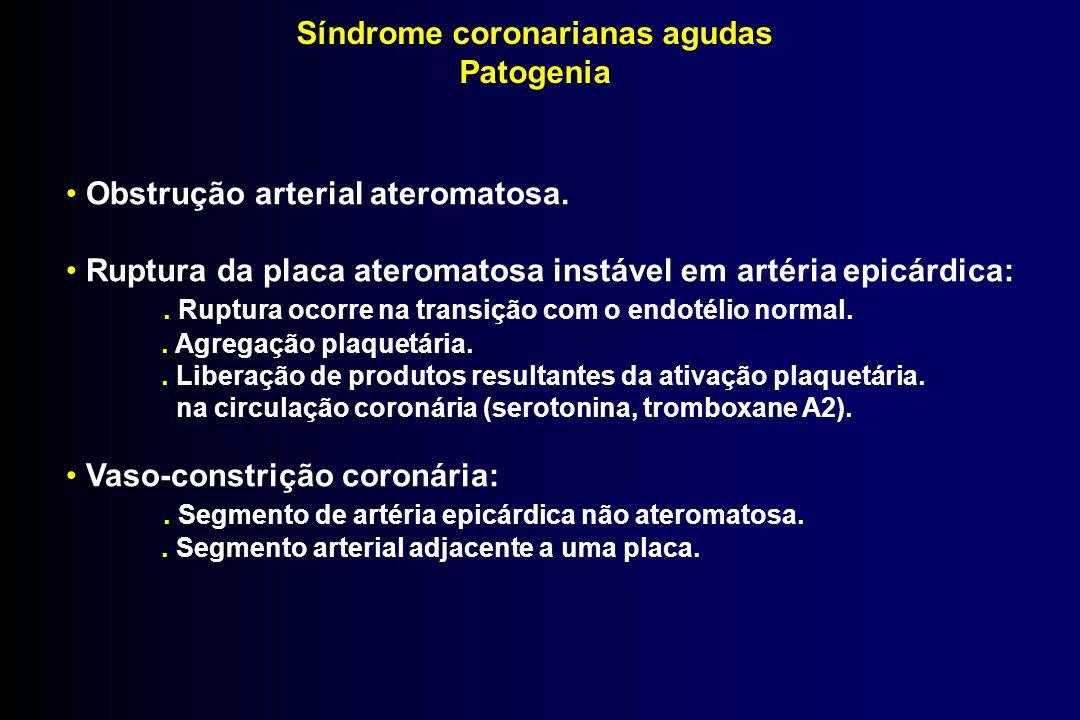 Síndrome coronarianas agudas Patogenia Obstrução arterial ateromatosa. Ruptura da placa ateromatosa instável em artéria epicárdica:. Ruptura ocorre na
