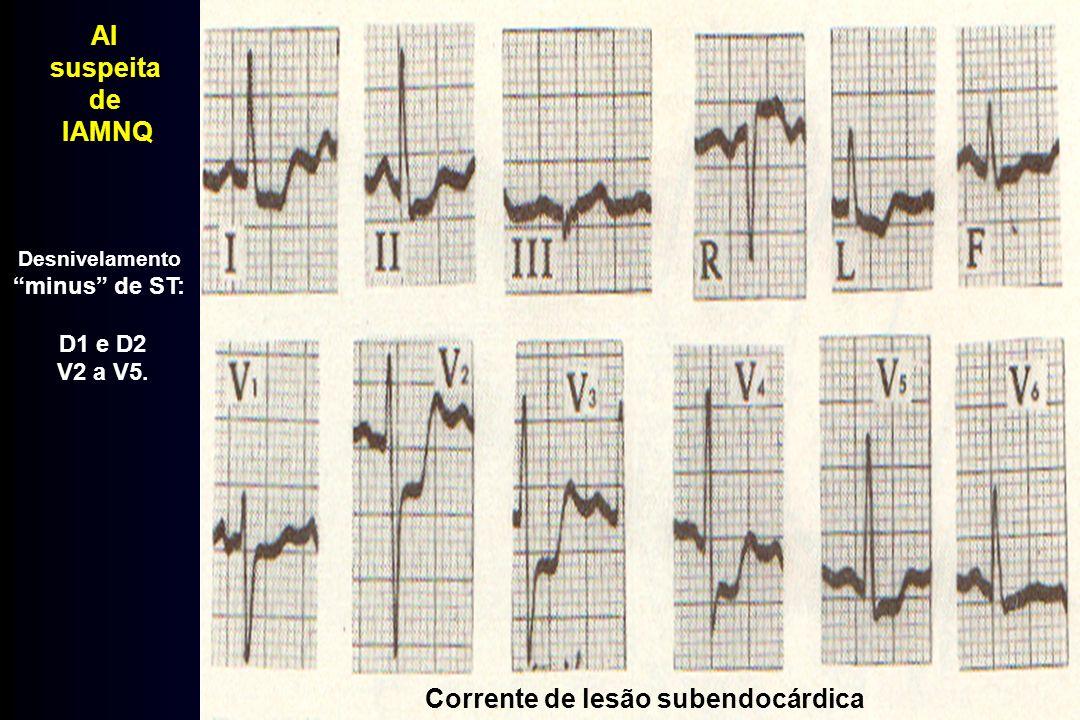 Corrente de lesão subendocárdica Desnivelamento minus de ST: D1 e D2 V2 a V5. AI suspeita de IAMNQ