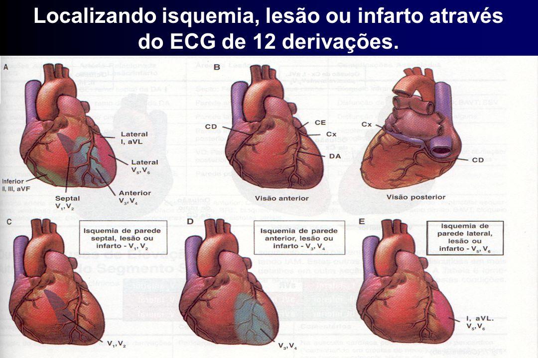 Localizando isquemia, lesão ou infarto através do ECG de 12 derivações.