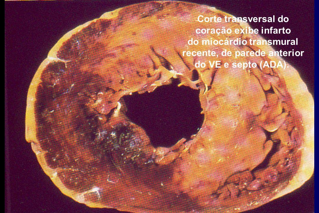 Corte transversal do coração exibe infarto do miocárdio transmural recente, de parede anterior do VE e septo (ADA).