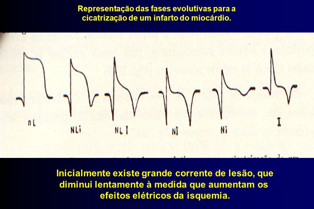 Representação das fases evolutivas para a cicatrização de um infarto do miocárdio. Inicialmente existe grande corrente de lesão, que diminui lentament