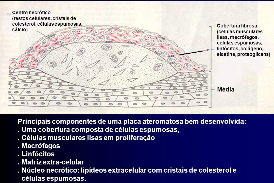 Principais componentes de uma placa ateromatosa bem desenvolvida:. Uma cobertura composta de células espumosas,. Células musculares lisas em prolifera