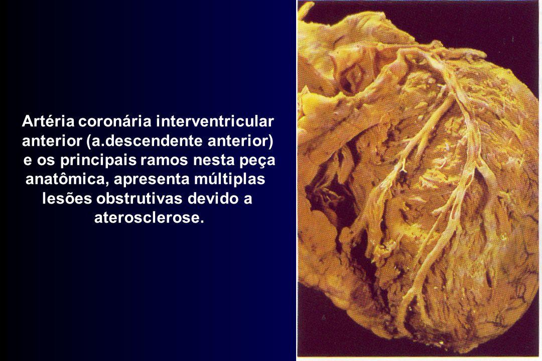 Artéria coronária interventricular anterior (a.descendente anterior) e os principais ramos nesta peça anatômica, apresenta múltiplas lesões obstrutiva