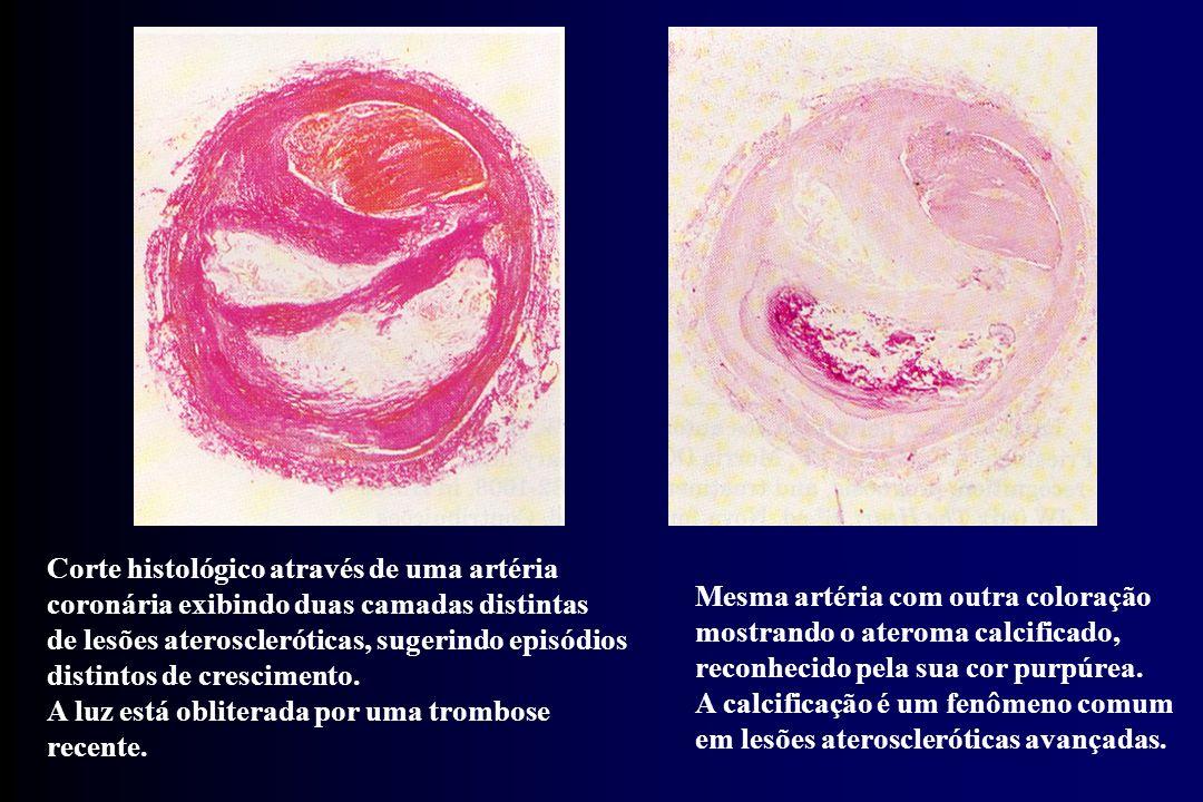 Corte histológico através de uma artéria coronária exibindo duas camadas distintas de lesões ateroscleróticas, sugerindo episódios distintos de cresci