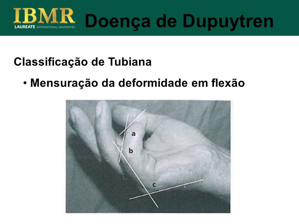 Classificação de Tubiana Doença de Dupuytren Mensuração da deformidade em flexão