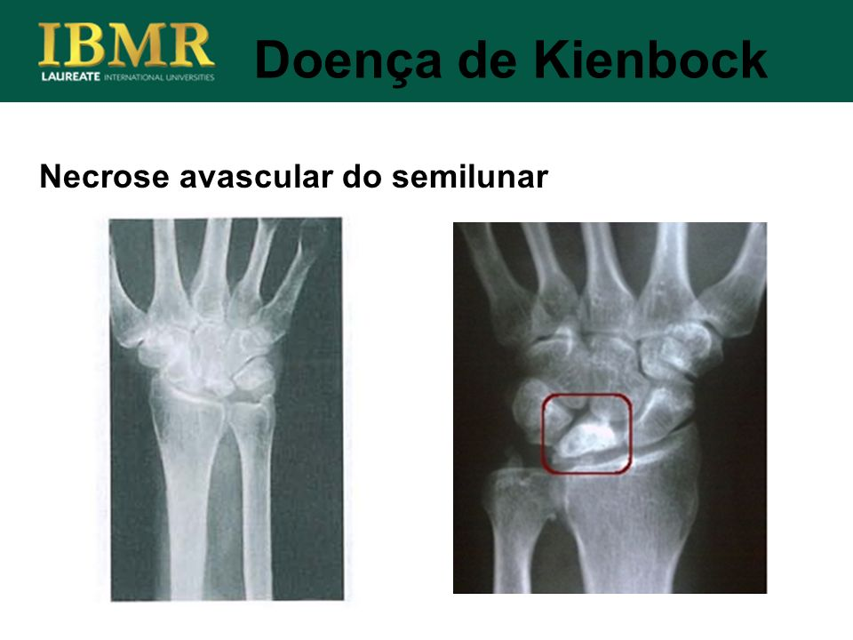 Necrose avascular do semilunar Doença de Kienbock