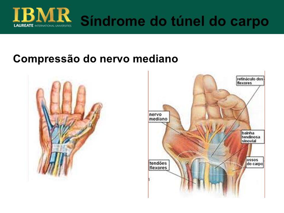Compressão do nervo mediano Síndrome do túnel do carpo