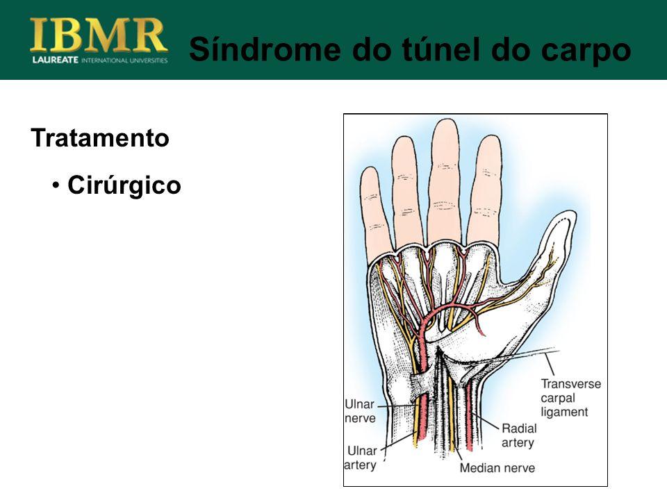 Tratamento Cirúrgico Síndrome do túnel do carpo