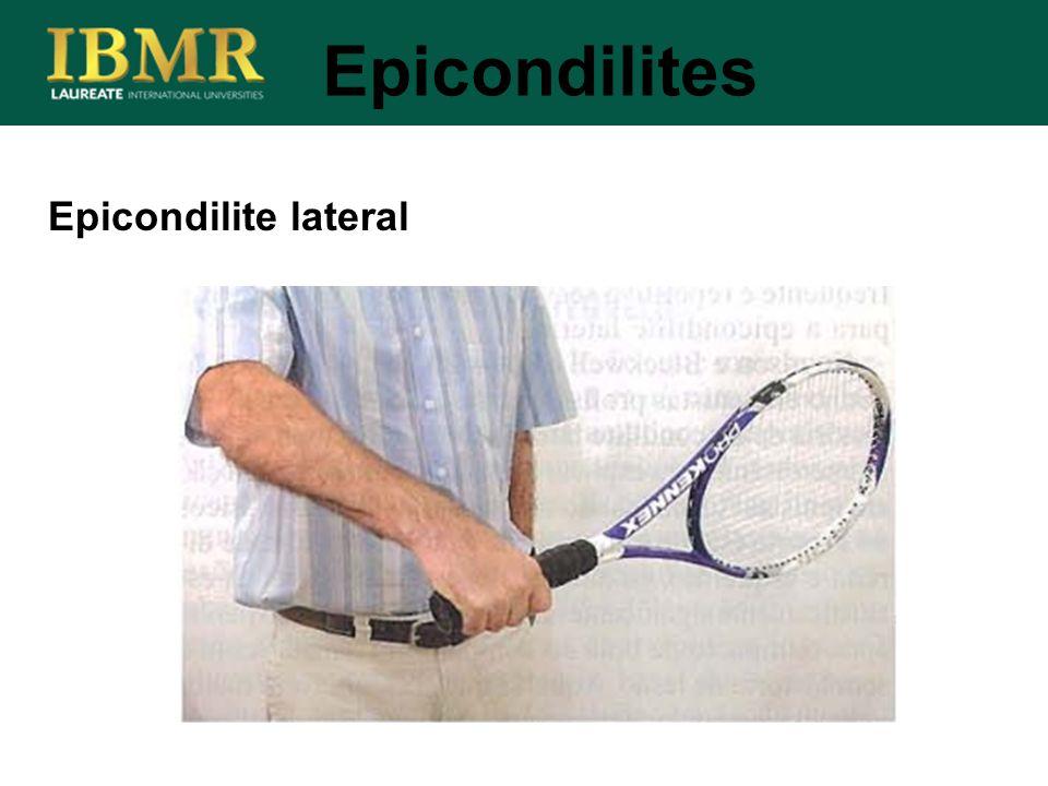 Epicondilite lateral Epicondilites