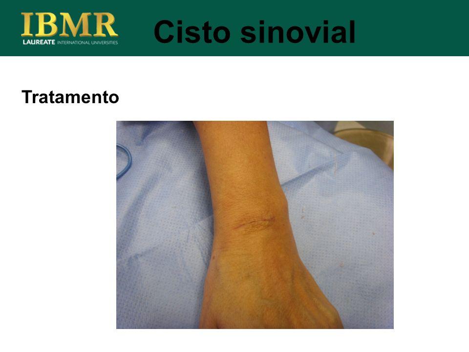 Tratamento Cisto sinovial