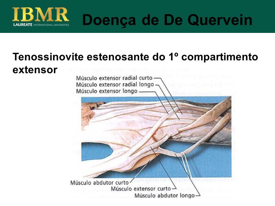 Tenossinovite estenosante do 1º compartimento extensor Doença de De Quervein