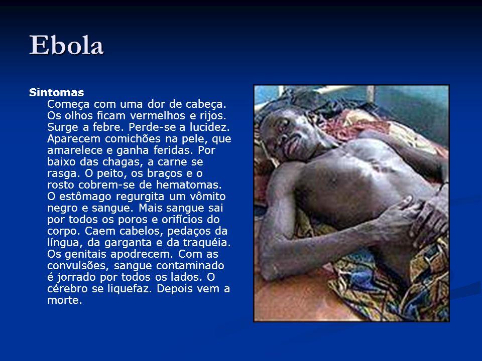 Ebola Sintomas Começa com uma dor de cabeça.Os olhos ficam vermelhos e rijos.
