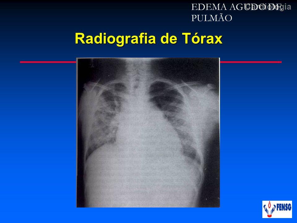 Cardiologia Radiografia de Tórax EDEMA AGUDO DE PULMÃO