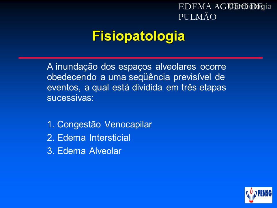 CardiologiaFisiopatologia EDEMA AGUDO DE PULMÃO A inundação dos espaços alveolares ocorre obedecendo a uma seqüência previsível de eventos, a qual est