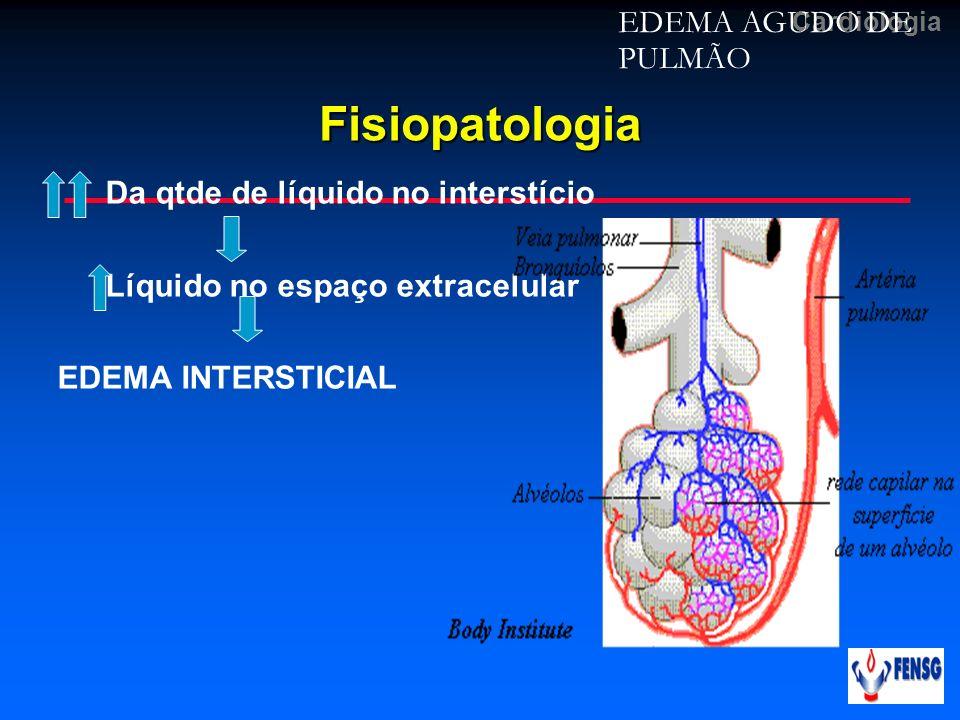CardiologiaFisiopatologia Da qtde de líquido no interstício Líquido no espaço extracelular EDEMA INTERSTICIAL EDEMA AGUDO DE PULMÃO