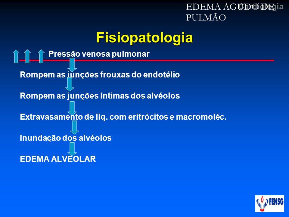 CardiologiaFisiopatologia Pressão venosa pulmonar Rompem as junções frouxas do endotélio Rompem as junções íntimas dos alvéolos Extravasamento de líq.