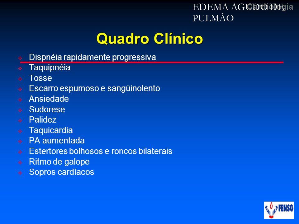 Cardiologia Quadro Clínico Dispnéia rapidamente progressiva Taquipnéia Tosse Escarro espumoso e sangüinolento Ansiedade Sudorese Palidez Taquicardia P