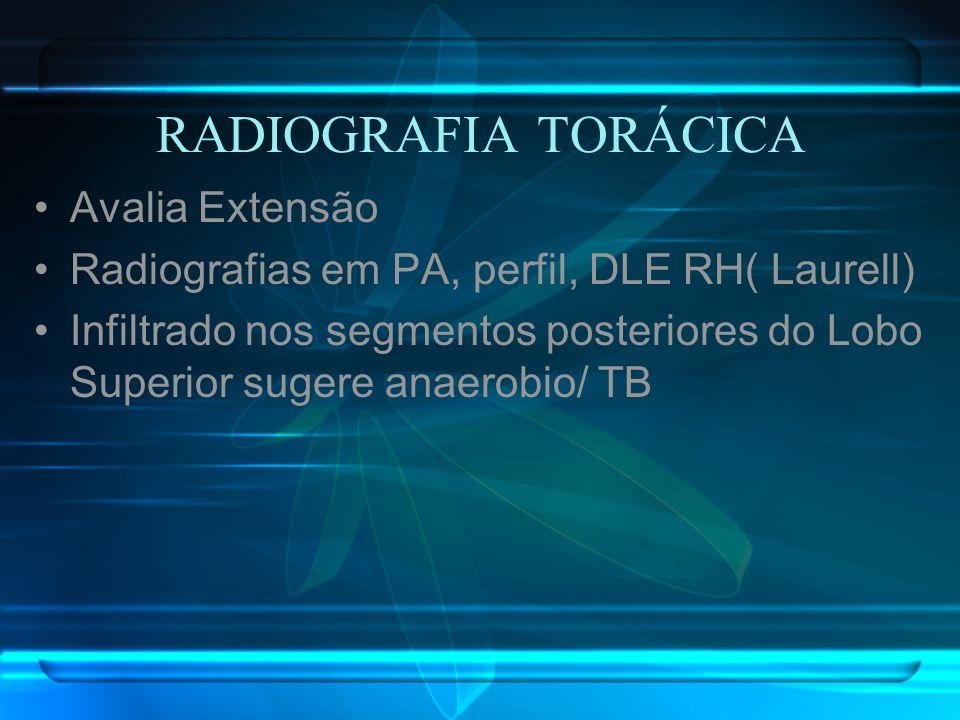 RADIOGRAFIA TORÁCICA Avalia Extensão Radiografias em PA, perfil, DLE RH( Laurell) Infiltrado nos segmentos posteriores do Lobo Superior sugere anaerob