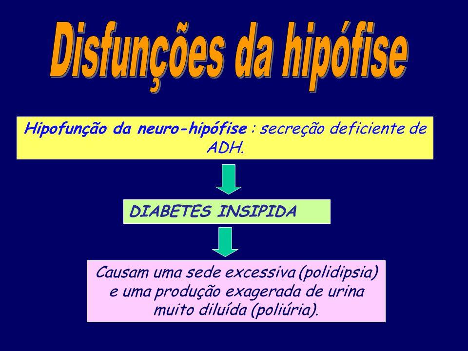 Hipofunção da neuro-hipófise : secreção deficiente de ADH. DIABETES INSIPIDA Causam uma sede excessiva (polidipsia) e uma produção exagerada de urina