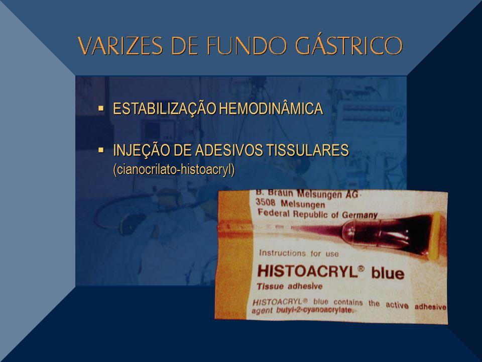 INJEÇÃO DE ADESIVOS TISSULARES (cianocrilato-histoacryl) INJEÇÃO DE ADESIVOS TISSULARES (cianocrilato-histoacryl) ESTABILIZAÇÃO HEMODINÂMICA ESTABILIZ