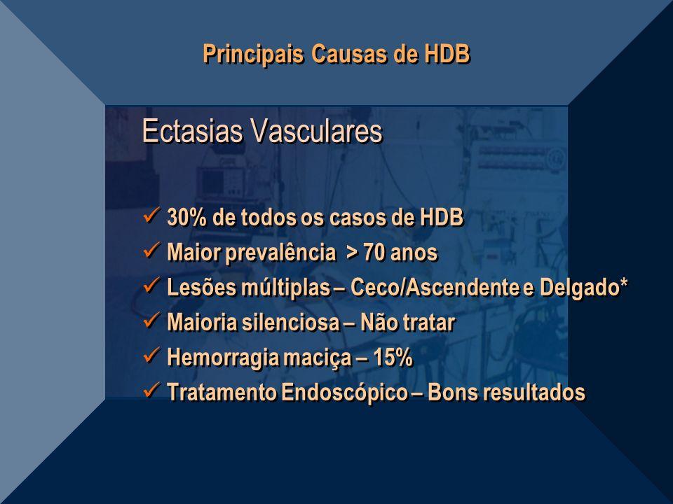 Principais Causas de HDB Ectasias Vasculares 30% de todos os casos de HDB Maior prevalência > 70 anos Lesões múltiplas – Ceco/Ascendente e Delgado* Ma