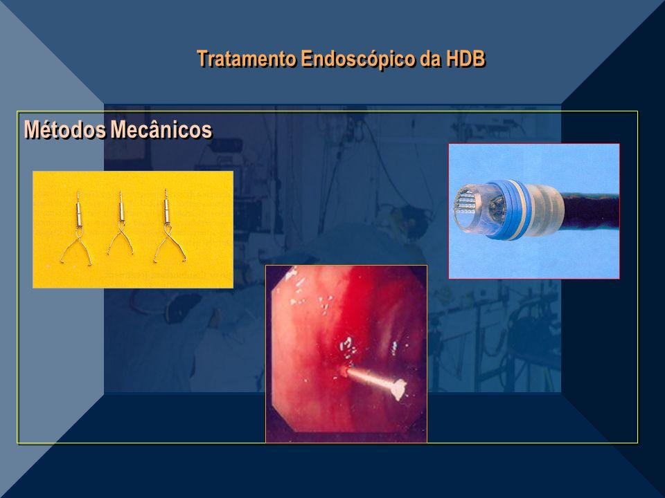 Tratamento Endoscópico da HDB Métodos Mecânicos