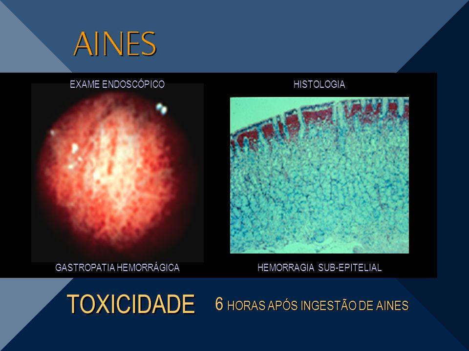 HEMORRAGIA SUB-EPITELIAL GASTROPATIA HEMORRÁGICA 6 HORAS APÓS INGESTÃO DE AINES TOXICIDADE HISTOLOGIA EXAME ENDOSCÓPICO