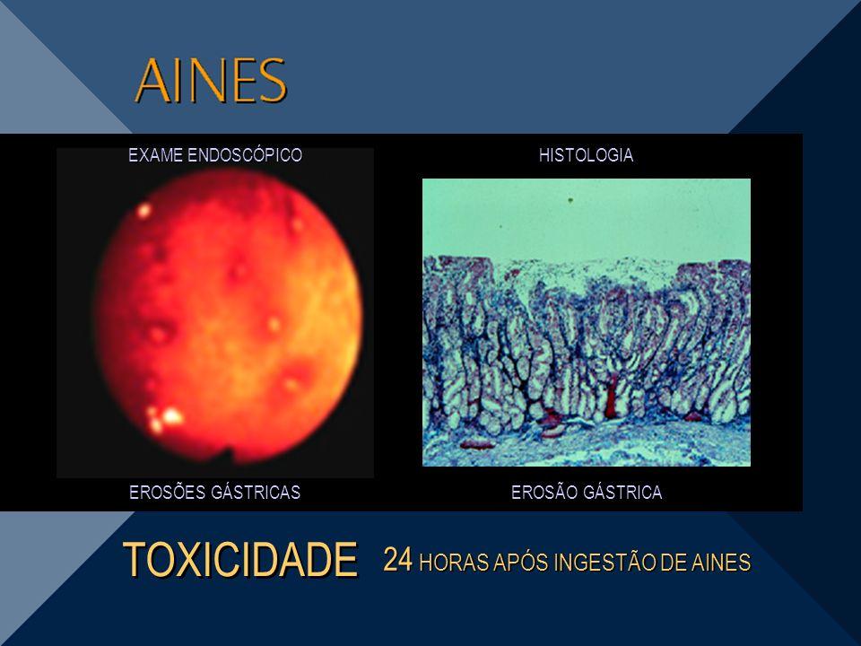 EROSÃO GÁSTRICA EROSÕES GÁSTRICAS 24 HORAS APÓS INGESTÃO DE AINES TOXICIDADE HISTOLOGIA EXAME ENDOSCÓPICO