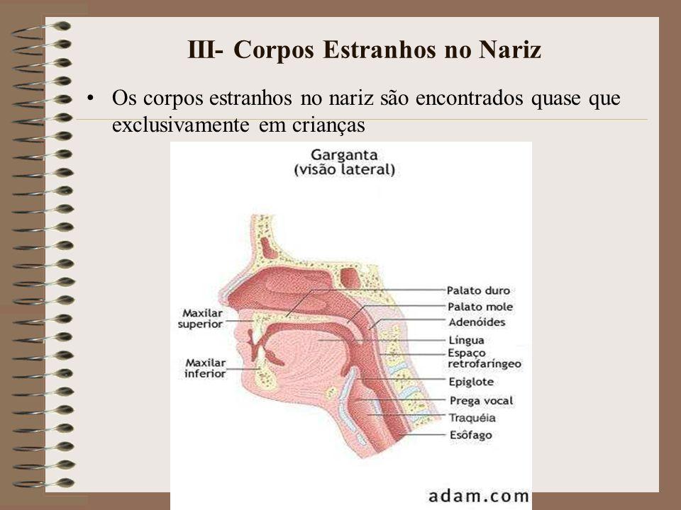 III- Corpos Estranhos no Nariz Os corpos estranhos no nariz são encontrados quase que exclusivamente em crianças