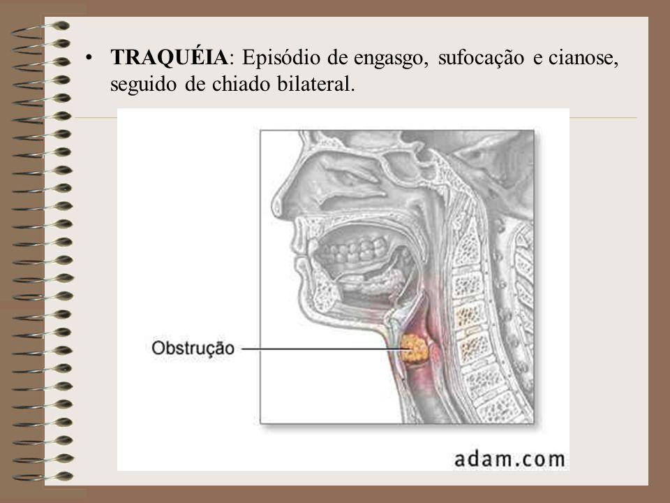 TRAQUÉIA: Episódio de engasgo, sufocação e cianose, seguido de chiado bilateral.