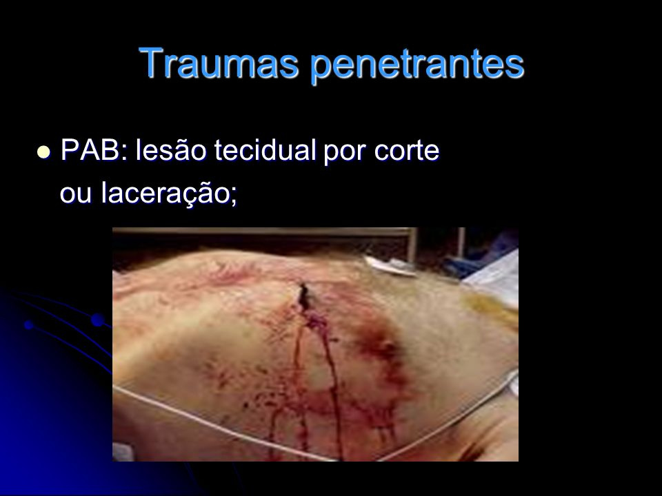 Traumas penetrantes PAF: lesões mais graves, cavitações, maior número de lesões.