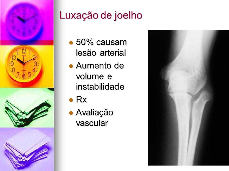 Luxação de joelho 50% causam lesão arterial 50% causam lesão arterial Aumento de volume e instabilidade Aumento de volume e instabilidade Rx Rx Avalia