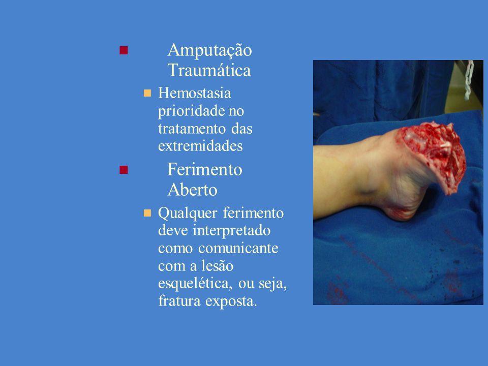 Amputação Traumática Hemostasia prioridade no tratamento das extremidades Ferimento Aberto Qualquer ferimento deve interpretado como comunicante com a