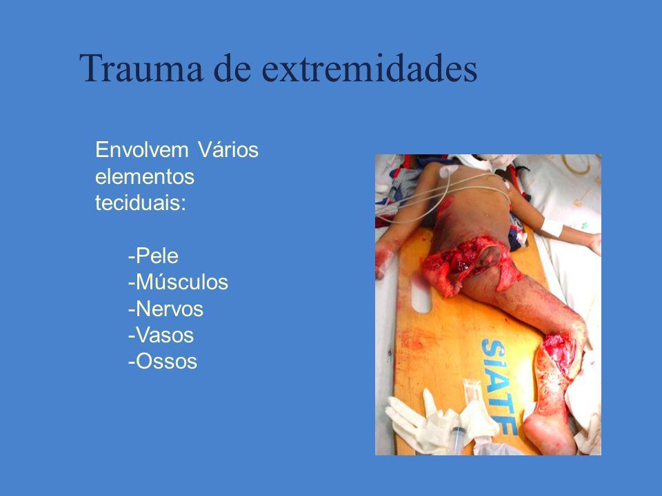 Trauma de extremidades Envolvem Vários elementos teciduais: -Pele -Músculos -Nervos -Vasos -Ossos
