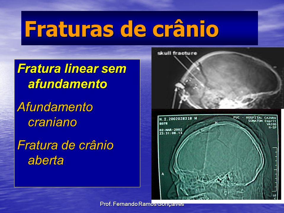 Prof. Fernando Ramos Gonçalves Fraturas de crânio Fratura linear sem afundamento Afundamento craniano Fratura de crânio aberta