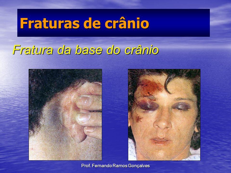Prof. Fernando Ramos Gonçalves Fratura da base do crânio Fraturas de crânio