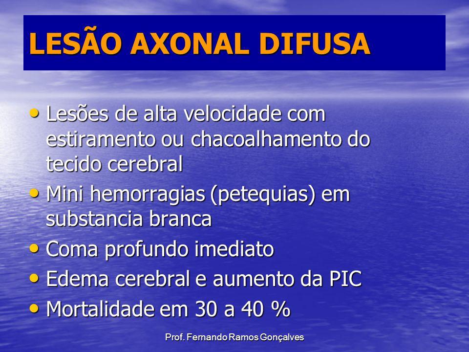 Prof. Fernando Ramos Gonçalves LESÃO AXONAL DIFUSA Lesões de alta velocidade com estiramento ou chacoalhamento do tecido cerebral Lesões de alta veloc