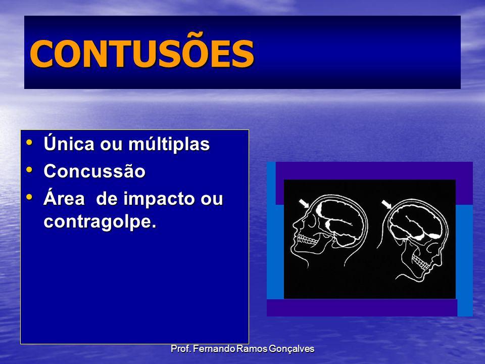 Prof. Fernando Ramos Gonçalves CONTUSÕES Única ou múltiplas Única ou múltiplas Concussão Concussão Área de impacto ou contragolpe. Área de impacto ou