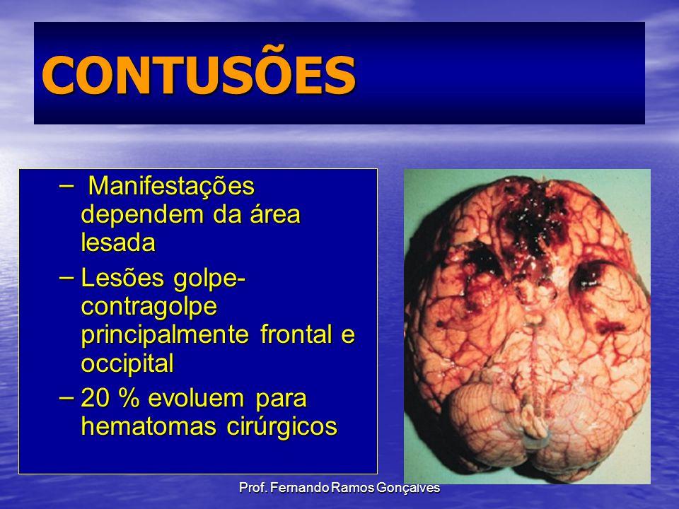 Prof. Fernando Ramos Gonçalves CONTUSÕES – Manifestações dependem da área lesada – Lesões golpe- contragolpe principalmente frontal e occipital – 20 %