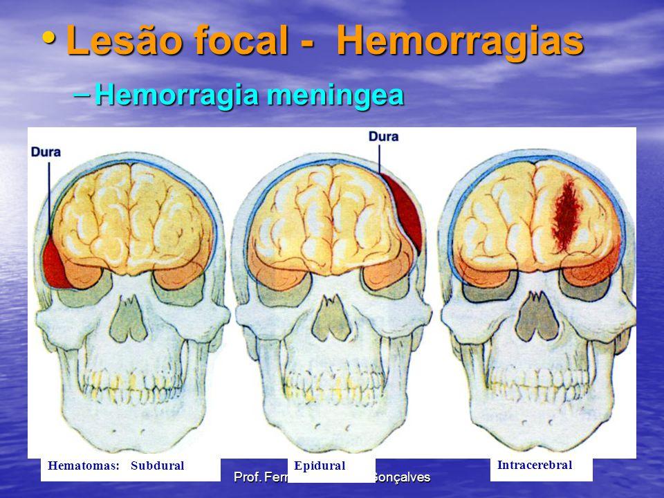 Lesão focal - Hemorragias Lesão focal - Hemorragias – Hemorragia meningea Hematomas: SubduralEpidural Intracerebral