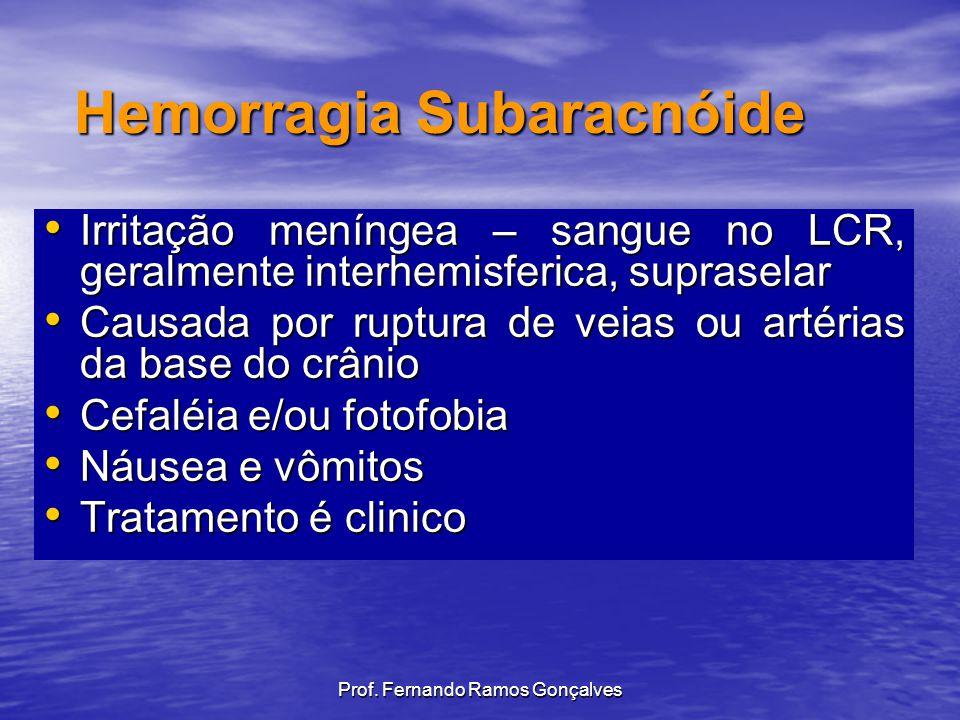 Prof. Fernando Ramos Gonçalves Irritação meníngea – sangue no LCR, geralmente interhemisferica, supraselar Irritação meníngea – sangue no LCR, geralme