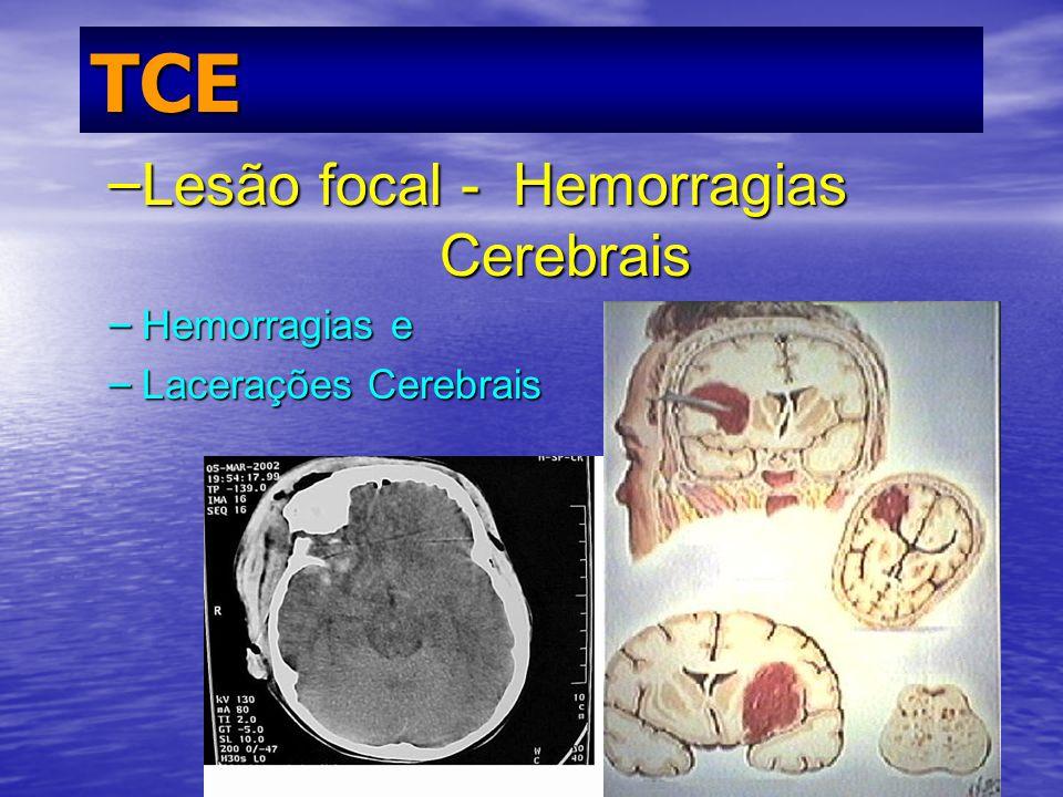 Prof. Fernando Ramos Gonçalves TCE – Lesão focal - Hemorragias Cerebrais – Hemorragias e – Lacerações Cerebrais