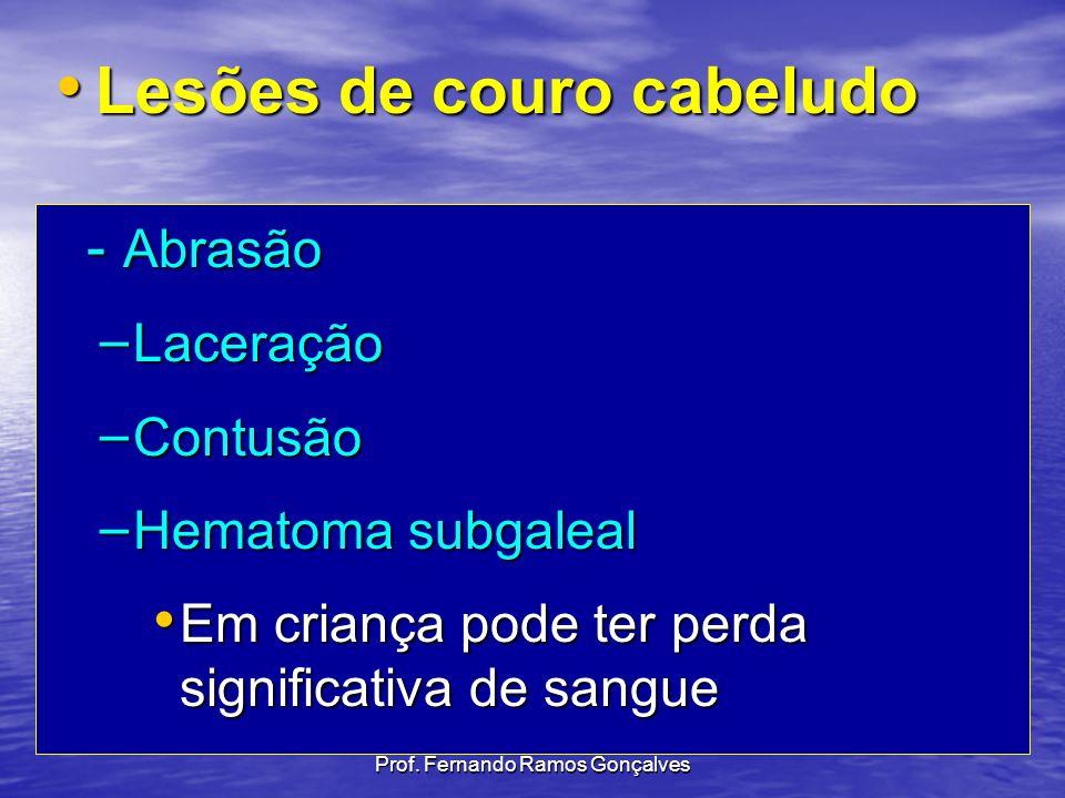 Prof. Fernando Ramos Gonçalves - Abrasão – Laceração – Contusão – Hematoma subgaleal Em criança pode ter perda significativa de sangue Em criança pode